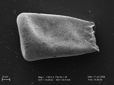<i><i>Eisenackitina</i> | Eisenackitina sp. 5</i><br />Pavilosta 51 borehole, 611.60 m, Kaugatuma Stage ( 754-243)