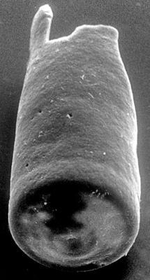 <i><i>Chitinozoa</i> | Conochitina sp. 2 Nestor, 1994</i><br />Varbla 502 borehole, 156.90 m, Adavere Stage ( 272-137)