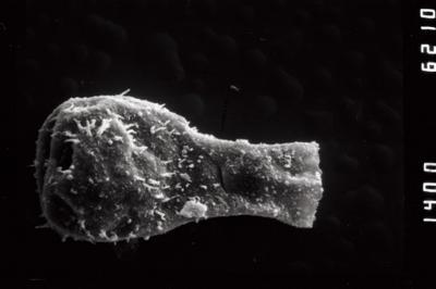 <i><i>Angochitina</i> | Angochitina sf. echinata</i><br />Ohesaare borehole, 45.00 m, Kaugatuma Stage ( 754-980)