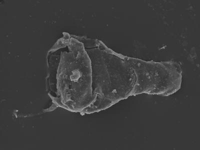 <i><i>Ancyrochitina rumbaensis</i></i><br />Kolka 54 borehole, 601.90 m, Adavere Stage ( 754-409)