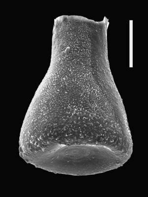 <i><i>Eisenackitina clunensis</i></i><br />Ventspils D-3 borehole, 312.00 m, Přidoli ( 607-61)