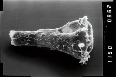 <i><i>Ancyrochitina convexa</i> | </i><br />Ohesaare borehole, 376.00 m, Raikküla Stage ( 754-1922)
