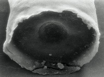 <i><i>Tanuchitina bergstroemi</i></i><br />Rapla borehole, 72.90 m, Pirgu Stage ( 190-4)