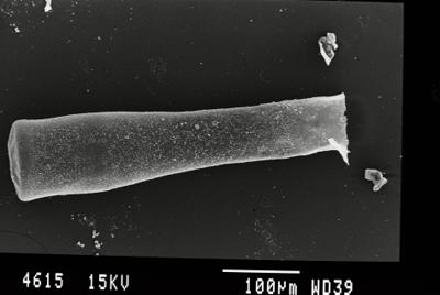 <i><i>Conochitina pachycephala</i></i><br />Gussev 1 borehole, Kaliningrad oblast, 1425.30 m, Paadla Stage ( 754-42)