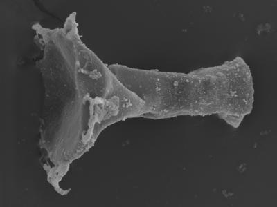 <i><i>Clathrochitina clathrata</i> | Clathrochitina cf. clathrata</i><br />Ohesaare borehole, 162.00 m, Jaagarahu Stage ( 754-336)