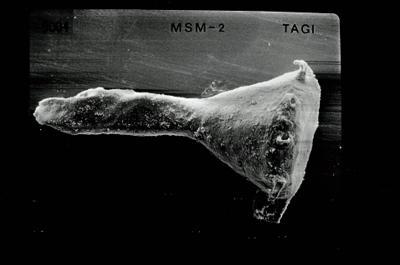 <i><i>Ancyrochitina ancyrea</i> | Ancyrochitina cf. ancyrea</i><br />Pulli 2 borehole, 20.70 m, Jaani Stage ( 754-536)