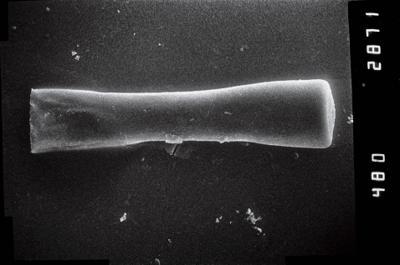 <i><i>Conochitina claviformis</i></i><br />Ruhnu 500 borehole, 392.80 m, Jaagarahu Stage ( 754-1052)