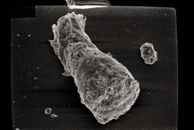 <i><i>Cingulochitina cingulata</i></i><br />Ohesaare borehole, 299.85 m, Jaani Stage ( 754-116)