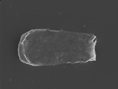 <i><i>Conochitina malleus</i></i><br />Kolka 54 borehole, 614.60 m, Raikküla Stage ( 754-399)