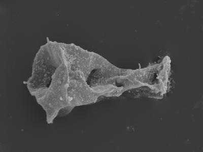 <i><i>Sphaerochitina</i> | Sphaerochitina sp. / Ramochitina sp.</i><br />Kolka 54 borehole, 416.00 m, Jaagarahu Stage ( 754-475)