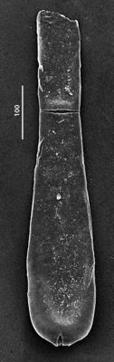 <i><i>Conochitina proboscifera</i></i><br />Aispute 41 borehole, 942.90 m, lower Silurian ( 345-28)