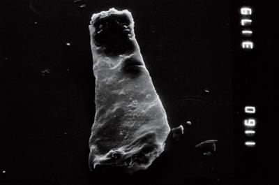 <i><i>Linochitina</i>   Linochitina sp.1</i><br />Viki borehole, 171.60 m, Adavere Stage ( 754-953)