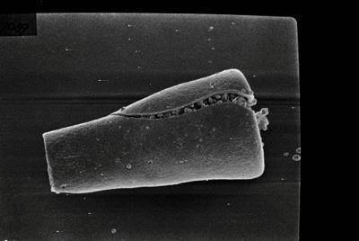 <i><i>Conochitina claviformis</i> | Conochitina cf. tuba</i><br />Ohesaare borehole, 303.30 m, Jaani Stage ( 754-125)