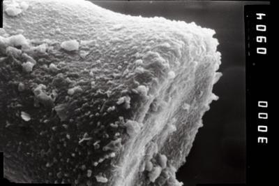 <i><i>Spinachitina</i> | Spinachitina cf. fragilis</i><br />Laeva 18 borehole, 173.15 m, Juuru Stage ( 754-1008)