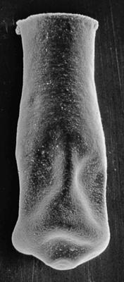 <i><i>Conochitina emmastensis</i></i><br />Sõru 400 borehole, 33.80 m, Adavere Stage ( 217-1)