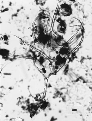 Gyalorhethium angustispinosum Uutela et Tynni, 1991, GIT 344-135