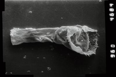 <i><i>Anthochitina primula</i></i><br />Viki borehole, 140.10 m, Adavere Stage ( 754-1115)