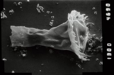 <i><i>Anthochitina primula</i></i><br />Viki borehole, 140.10 m, Adavere Stage ( 754-1118)