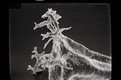 <i><i>Ancyrochitina</i> | Ancyrochitina n. sp.</i><br />Ohesaare borehole, 441.60 m, Juuru Stage ( 754-493)