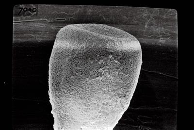 <i><i>Conochitina lagena</i></i><br />Ruhnu 500 borehole, 361.90 m, Jaagarahu Stage ( 754-688)