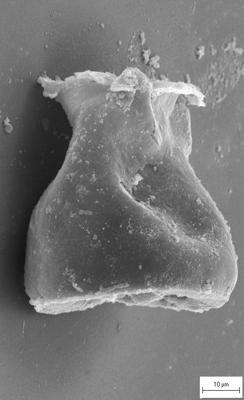 <i><i>Cingulochitina crassa</i></i><br />Staicele 4 borehole, 252.30 m, Jaagarahu Stage ( 754-1386)