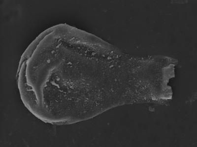 <i><i>Sphaerochitina</i> | Sphaerochitina? sp.</i><br />Kolka 54 borehole, 416.00 m, Jaagarahu Stage ( 754-1227)
