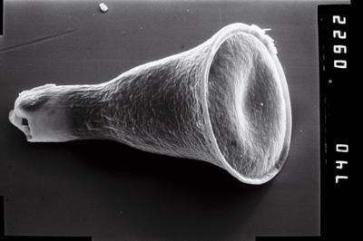 <i><i>Cyathochitina campanulaeformis</i></i><br />Ruhnu 500 borehole, 600.40 m, Juuru Stage ( 754-1018)