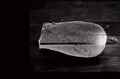 <i><i>Eisenackitina dolioliformis</i> | Eisenackitina aff. dolioliformis</i><br />Tõlla borehole, 126.10 m, Jaani Stage ( 754-526)