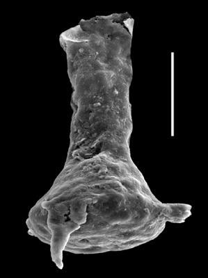<i><i>Plectochitina pachyderma</i></i><br />Paatsalu 527 borehole, 64.23 m, Wenlock ( 493-22)