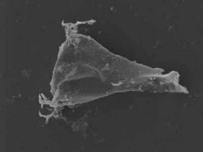<i><i>Ancyrochitina</i>   Ancyrochitina sp.</i><br />Kolka 54 borehole, 499.00 m, Jaagarahu Stage ( 754-447)