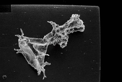 <i><i>Ancyrochitina primitiva</i></i><br />Ruhnu 500 borehole, 395.80 m, Jaagarahu Stage ( 754-127)