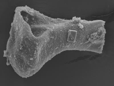 <i><i>Sphaerochitina lycoperdoides</i></i><br />Ohesaare borehole, 152.90 m, Rootsiküla Stage ( 754-349)