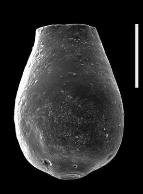 <i><i>Bursachitina concava</i> | Bursachitina concava Eisensck, 1972</i><br />Dubovskoye borehole, 1131.80 m, Přidoli ( 607-38)