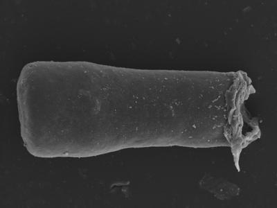 <i><i>Conochitina</i>   Conochitina cribrosa?</i><br />Kolka 54 borehole, 462.20 m, Jaagarahu Stage ( 754-1240)