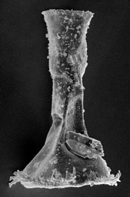 <i><i>Ancyrochitina ansarviensis</i></i><br />Ruhnu 500 borehole, 457.45 m, Jaani Stage ( 220-14)
