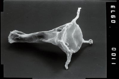 <i><i>Plectochitina</i>   Plectochitina cf. nodifera</i><br />Viki borehole, 238.90 m, Juuru Stage ( 754-1051)