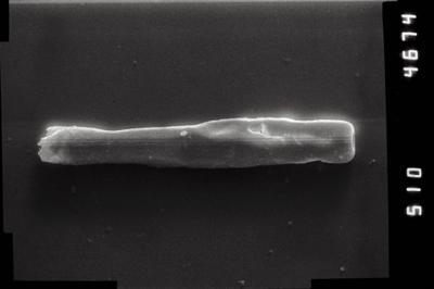 <i><i>Conochitina iklaensis</i></i><br />Puikule 42 borehole, 331.50 m, Adavere Stage ( 754-1110)
