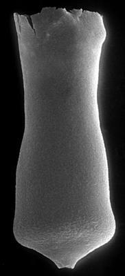 <i><i>Conochitina acuminata</i></i><br />Ohesaare borehole, 349.40 m, Adavere Stage ( 272-63)