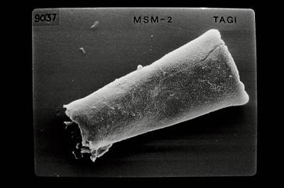<i><i>Conochitina argillophila</i> | Conochitina cf. argillophila</i><br />Ikla borehole, 185.50 m, Jaagarahu Stage ( 754-656)