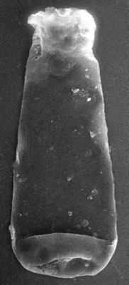 <i><i>Vitreachitina</i> | Vitreachitina sp. 1 Nestor, 1994</i><br />Nagli 106 borehole, 645.40 m, Adavere Stage ( 272-194)