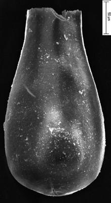 <i><i>Eisenackitina spongiosa</i></i><br />Staicele 4 borehole, 249.00 m, Jaagarahu Stage ( 350-23)
