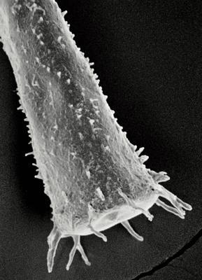 <i><i>Spinachitina taugourdeaui</i> | Conochitina taugourdeaui Eisenack, 1968</i><br />Undva 580 borehole, 152.40 m, Porkuni Stage ( 306-14)