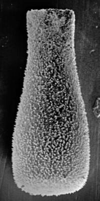 <i><i>Belonechitina postrobusta</i> | Conochitina postrobusta Nestor, 1980</i><br />Ikla borehole, 504.20 m, Juuru Stage ( 212-12)
