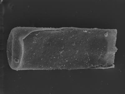 <i><i>Conochitina cribrosa</i> | Conochitina cribrosa?</i><br />Ohesaare borehole, 161.70 m, Jaagarahu Stage ( 754-310)