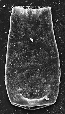 <i><i>Conochitina visbyensis</i></i><br />Aispute 41 borehole, 964.60 m, lower Silurian ( 345-20)