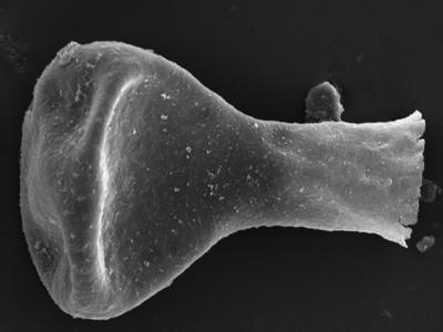 <i><i>Sphaerochitina</i> | Sphaerochitina? sp.</i><br />Kolka 54 borehole, 430.80 m, Jaagarahu Stage ( 754-1222)