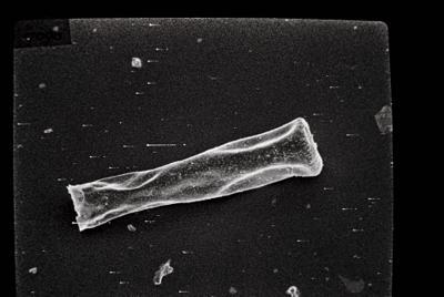 <i><i>Spinachitina</i> | Spinachitina? </i><br />Ikla borehole, 509.90 m, Juuru Stage ( 754-146)