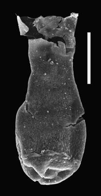 <i><i>Chitinozoa</i> | Angochitina sp. 3</i><br />Ventspils D-3 borehole, 300.00 m, Přidoli ( 607-71)