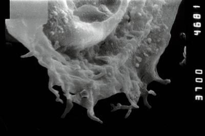 <i><i>Anthochitina primula</i></i><br />Viki borehole, 140.10 m, Adavere Stage ( 754-1114)