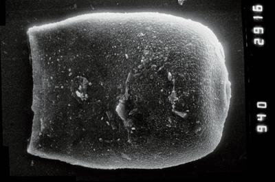 <i><i>Eisenackitina dolioliformis</i></i><br />Nagli 106 borehole, 631.00 m, Adavere Stage ( 754-867)